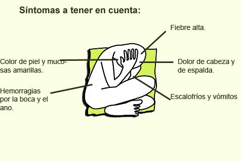sintomas fiebre amarilla