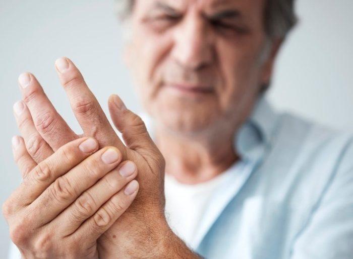 artritis-tratamientos