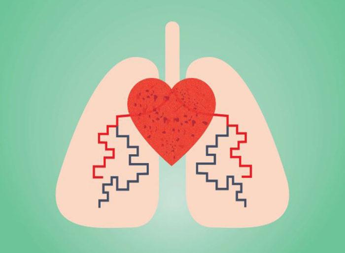 ¿La hipertensión causa hipertensión pulmonar?
