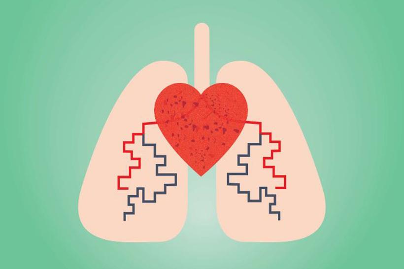 ¿Cuáles son las causas de la hipertensión pulmonar?